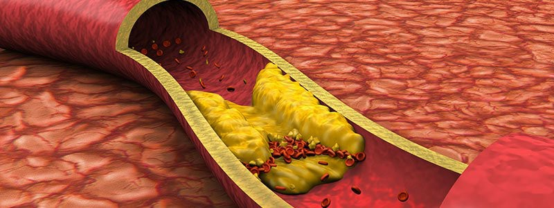Blood lipids a risk for cardiovascular