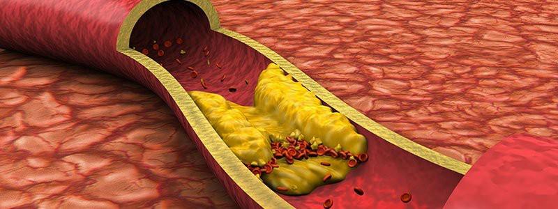 Blood lipids a risk for cardiovascular